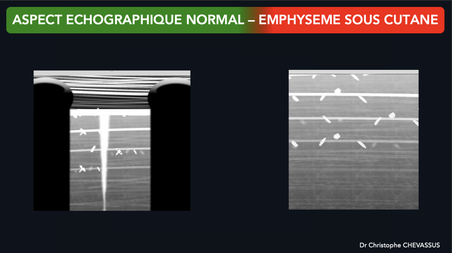 Aspect échographique de l'emphysème sous cutané versus aspect échographique de la paroi thoracique normale