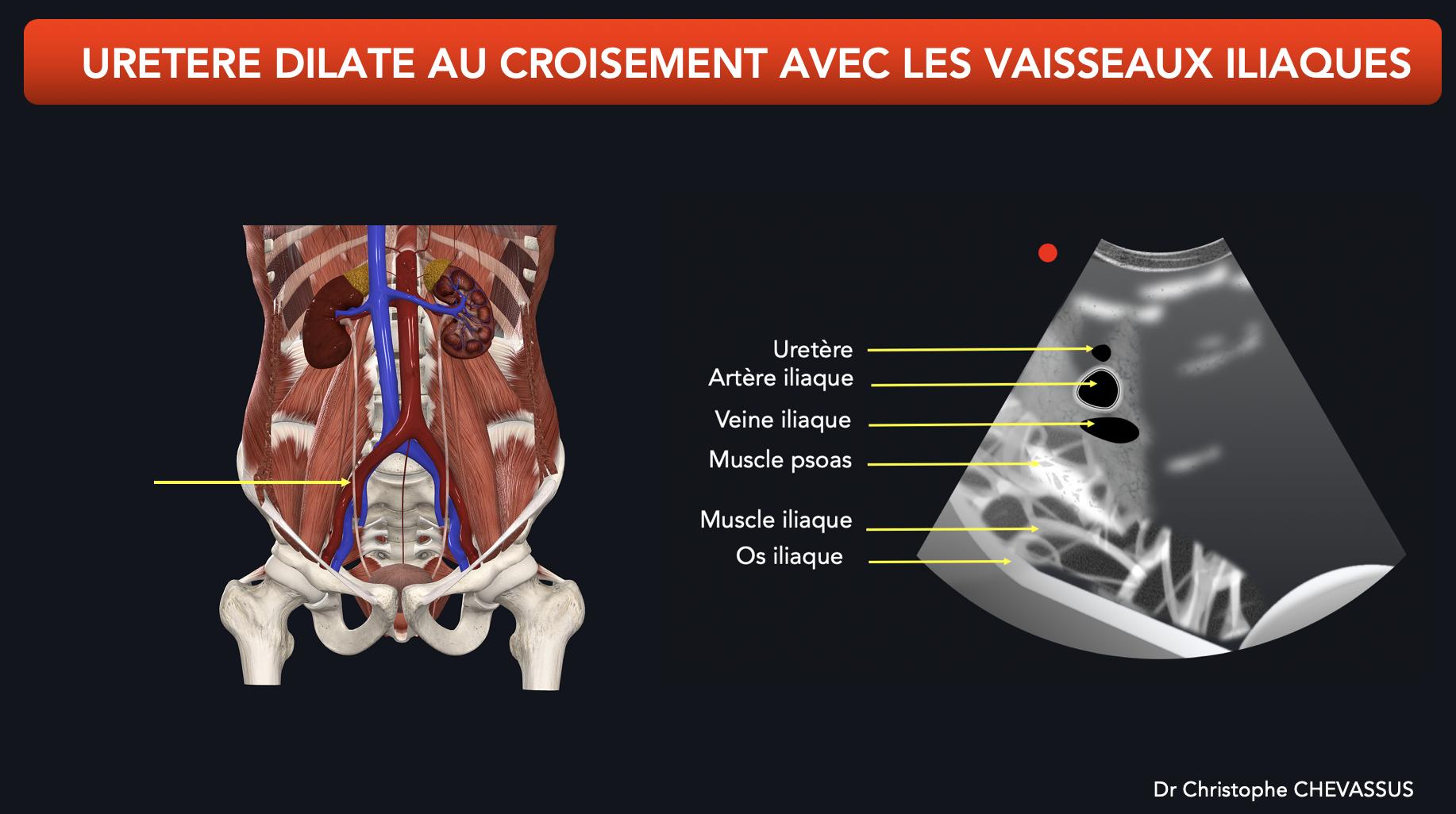 Dilatation urétérale au croisement avec les vaisseaux iliaques
