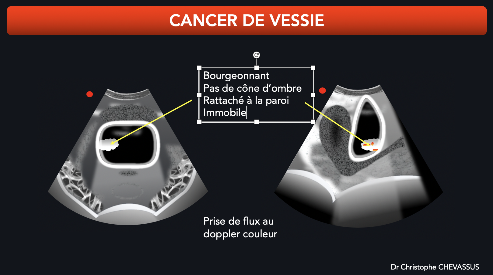 Cancer de vessie