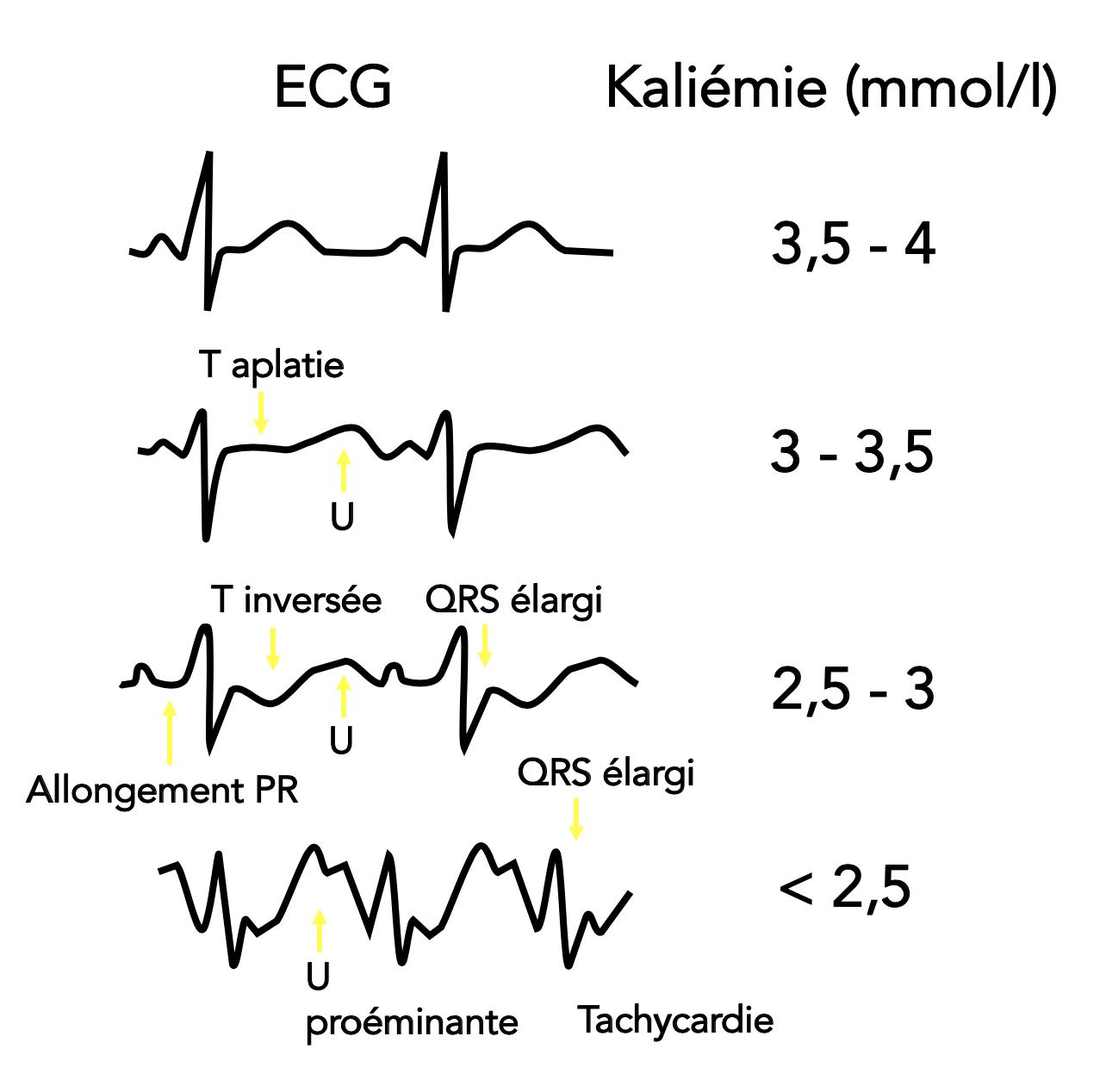 Evolution de l'ECG avec la gravité de l'hypokaliémie