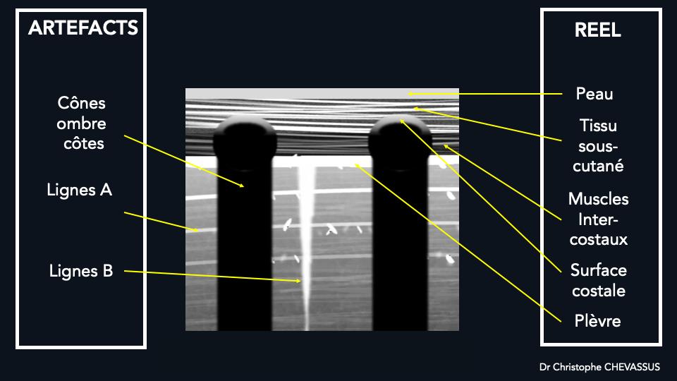 Les lignes B sont des artéfacts naissant de la ligne pleurale, hyperéchogène, en rayon laser, bien définis, effaçant les lignes A, allant jusqu'en profondeur