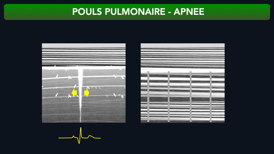 Le pouls pulmonaire est la transmission du battement cardiaque au poumon puis à la plèvre viscérale puis à la plèvre pariétale puis à la sonde. En mode TM des bandes verticales à espace régulier sont visibles sous la plèvre