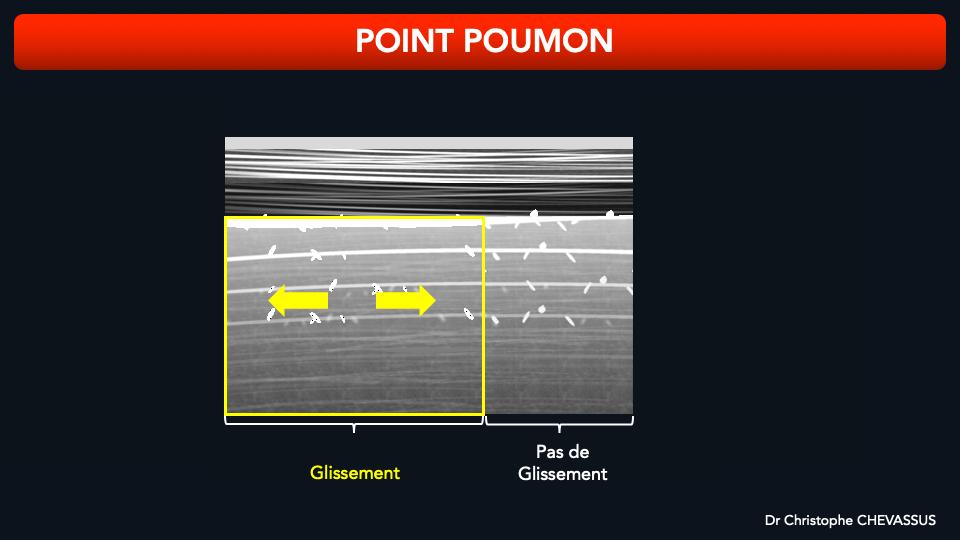 Le point poumon est la zone d'accolement entre la plèvre normale produisant un glissement pleural et la plèvre anormale n'en produisant pas