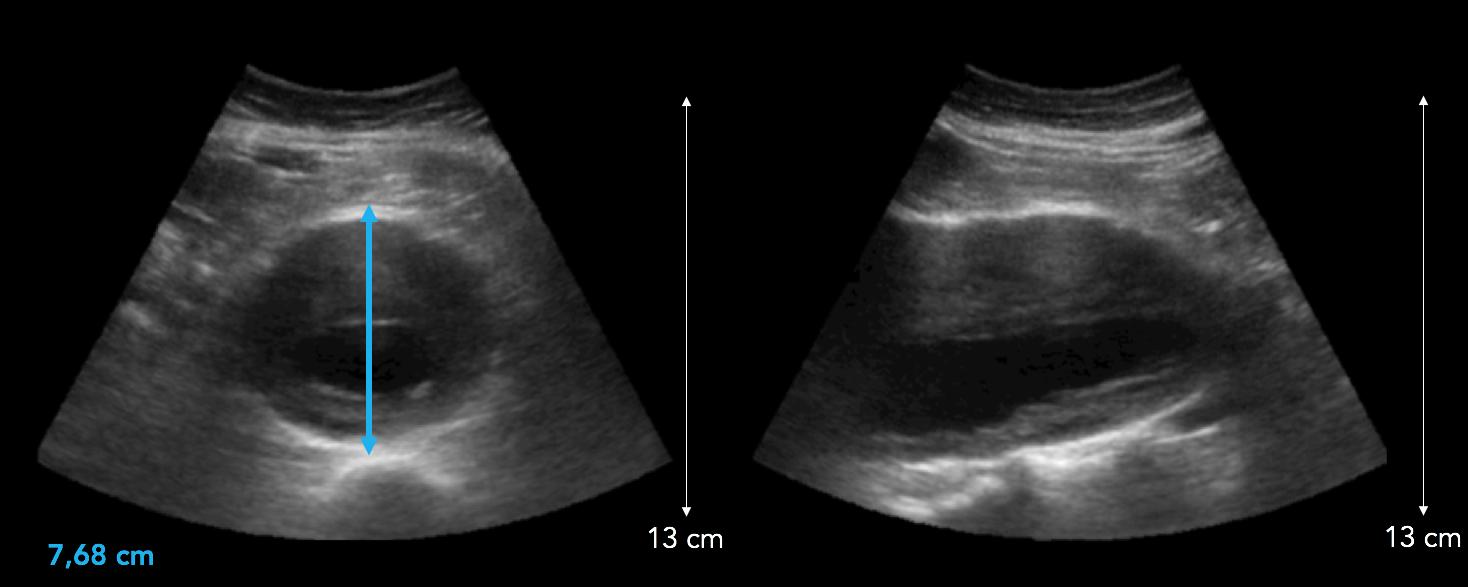 Anévrisme aorte abdominale thrombosé