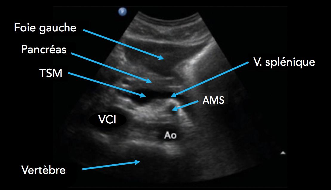 Coupe proximale à hauteur de l'artère mésentérique supérieure
