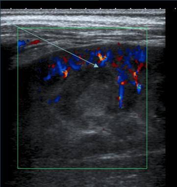 Abcès rénal : image ronde hype-échogène non vascularisée