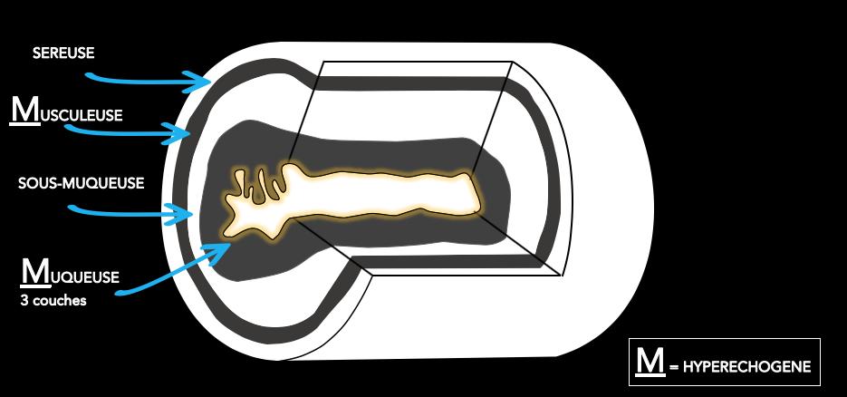 L'échogénicité des couches de la paroi intestinale
