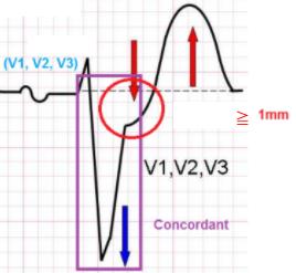 Concordance QRS -/ST-  (V1,V2,V3)