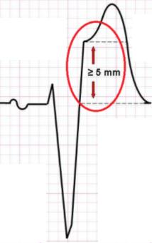 Discordance ≥ 5mm QRS-/ST+
