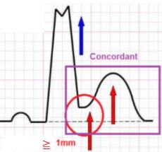 Concordance QRS+/ST+