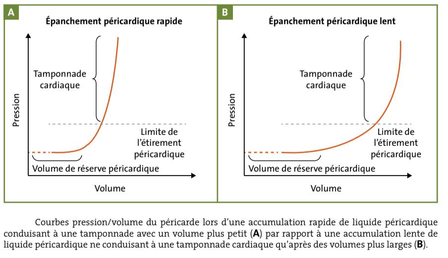 courbe pression/volume