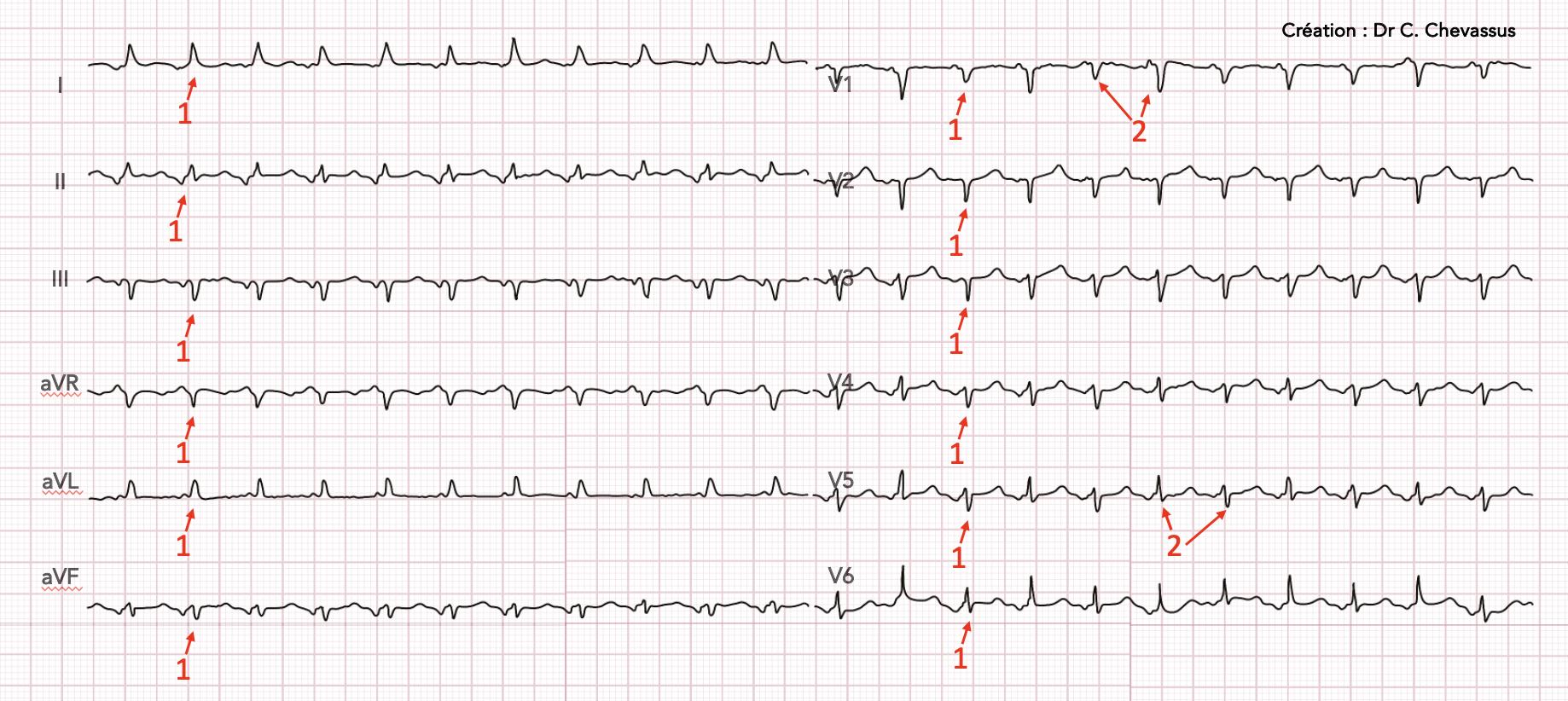 Tamponnade, tachycardie, 1 : microvoltage, 2 : alternance électrique