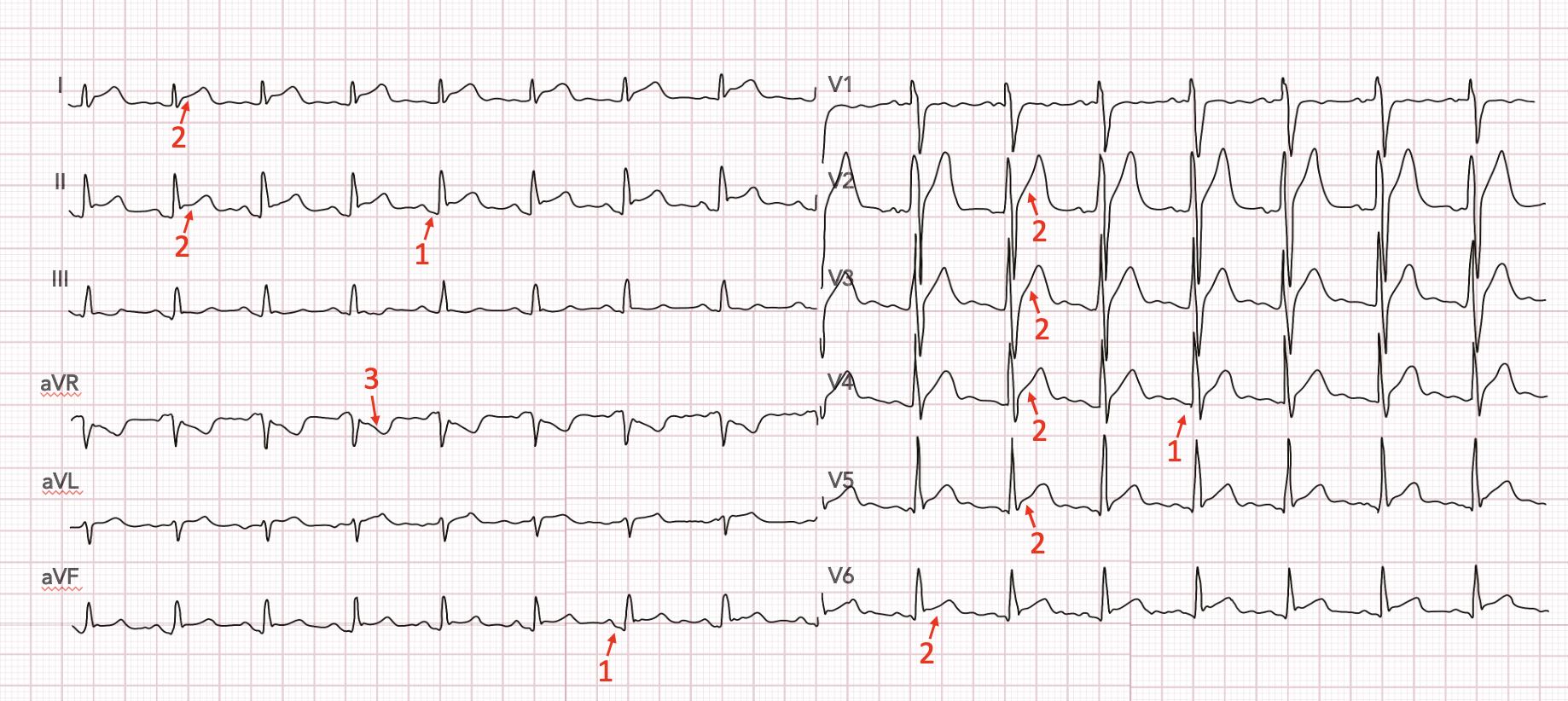 Péricardite : inflammation du péricardite, troubles diffus, 1 : PQ descendant, 2 : Sus décalage ST ascendant concave, 3 : miroir isolé en aVR