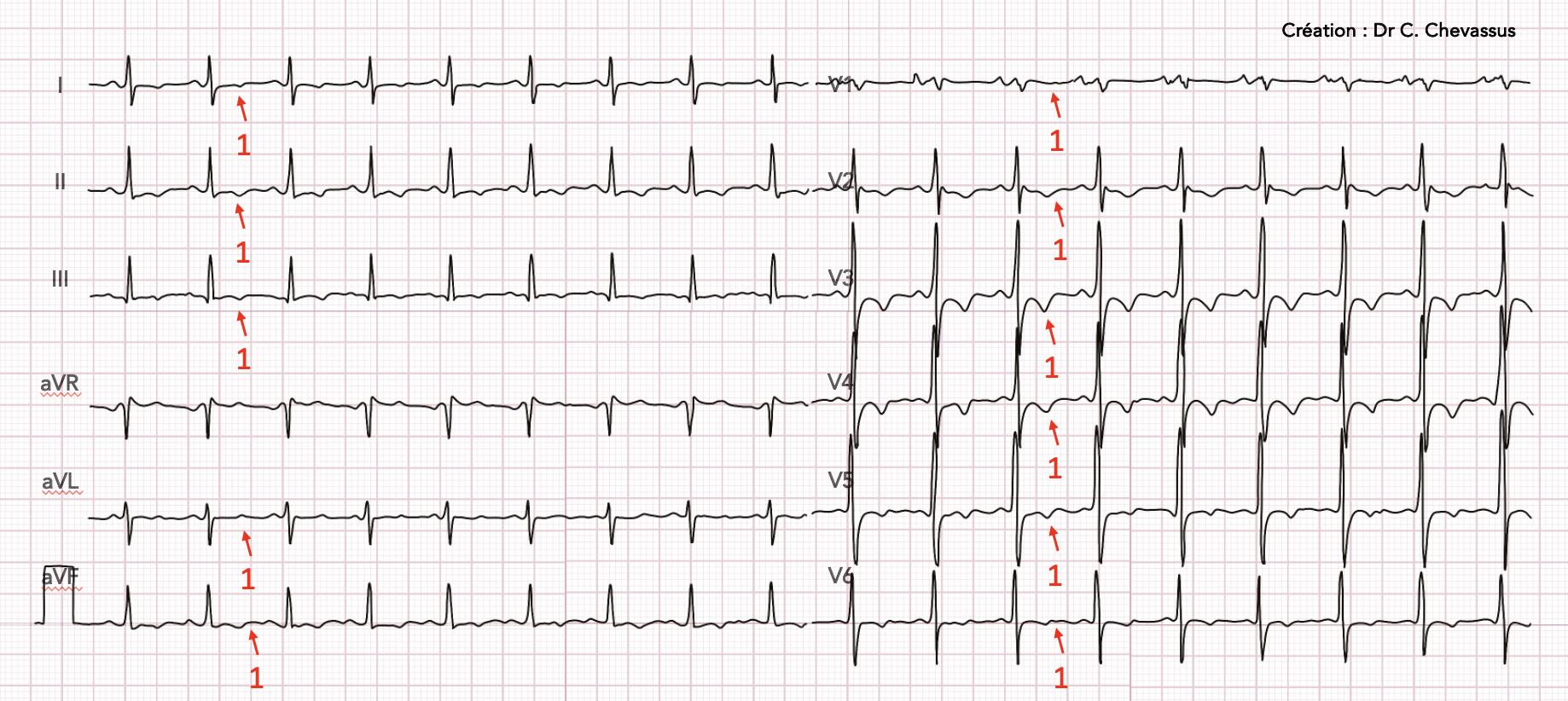 Péricardite, épanchement, tachycardie, 1 : anomalies diffuses de l'onde T plates ou négatives