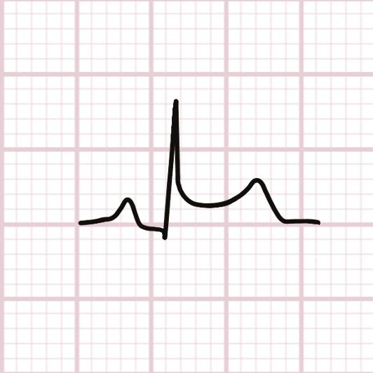 Phase précoce, 24h : sus décalage ST concave vers le haut et sous décalage du segment PQ