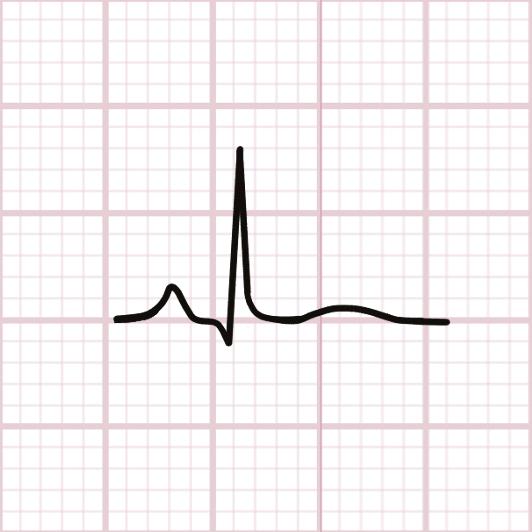 24-48 h : retour à la ligne iso-électrique du segment ST avec aplatissement de l'onde T