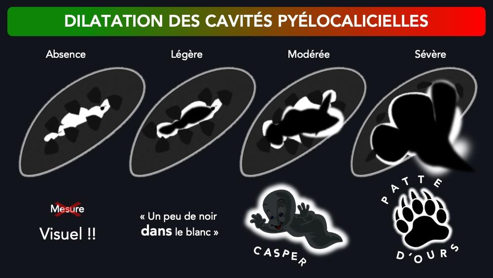 Dilatation des cavités pyélocalicielles - Aspect échographique